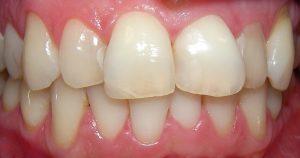 Beispiel 2 - Vor der Veneer Behandlung